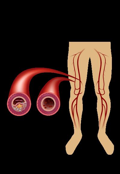 Peripheral Arterial Occlusive Disease graphic.